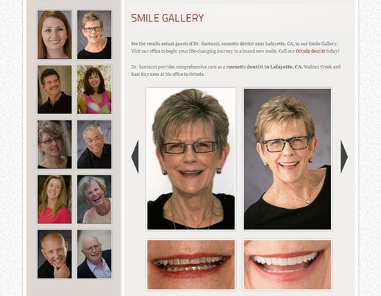 SmileGalleryPhotos